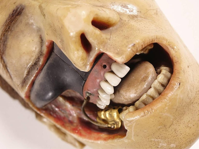 French Highly Detailed Early 1800s Wax Dental Model For Sale