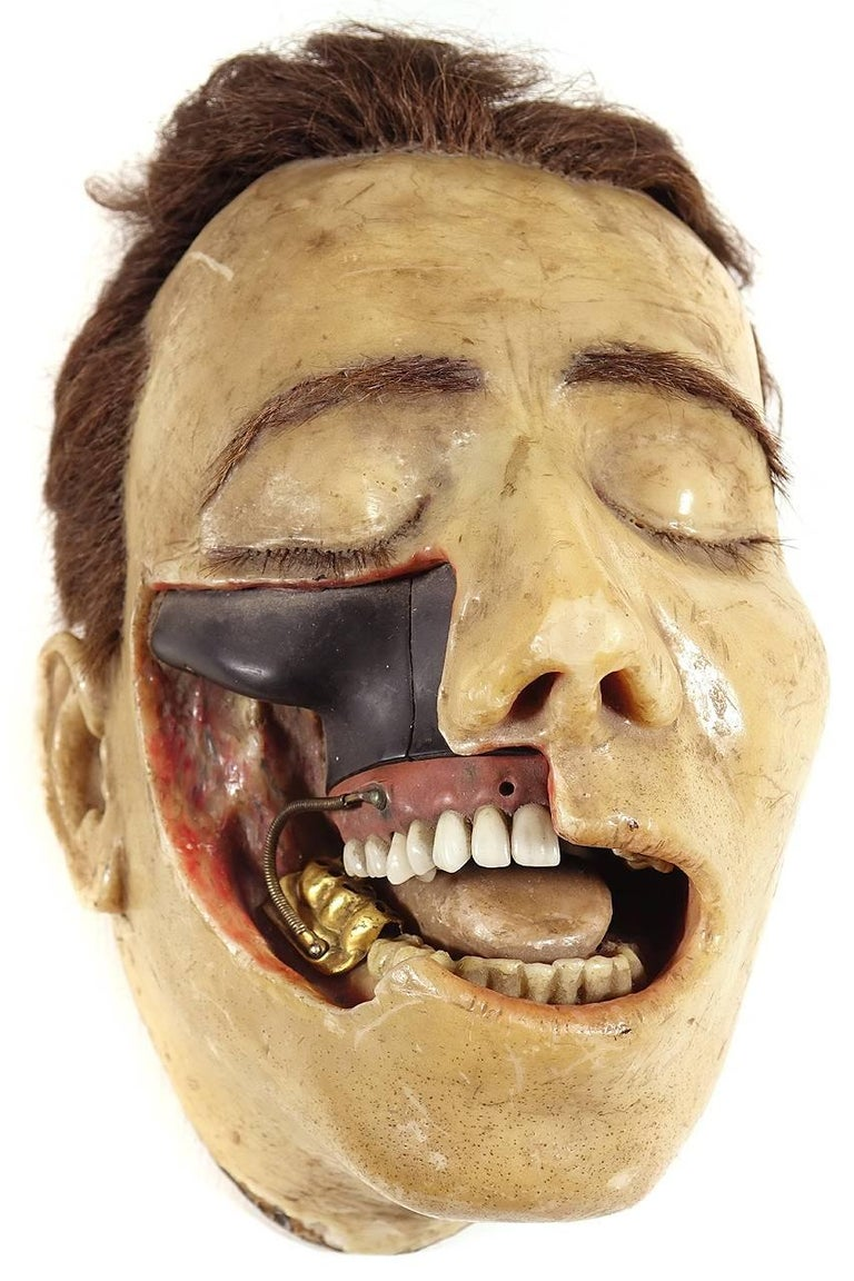 Highly Detailed Early 1800s Wax Dental Model In Excellent Condition For Sale In Peekskill, NY