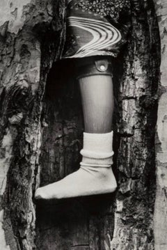 Prosthetic Leg in Tree