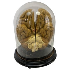 Early Didactic Model of a Human Brain, 4 Section, Plaster, Kovodelny Podnik