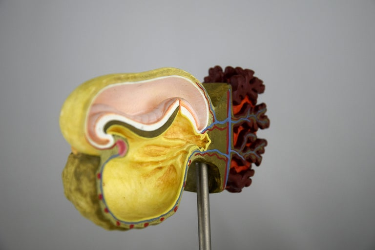 Handmade Mid-Century Modern Anatomical Cell Division Models For Sale 11