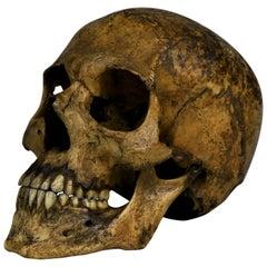 Human Medical Skull 19th Century Mesopotamian