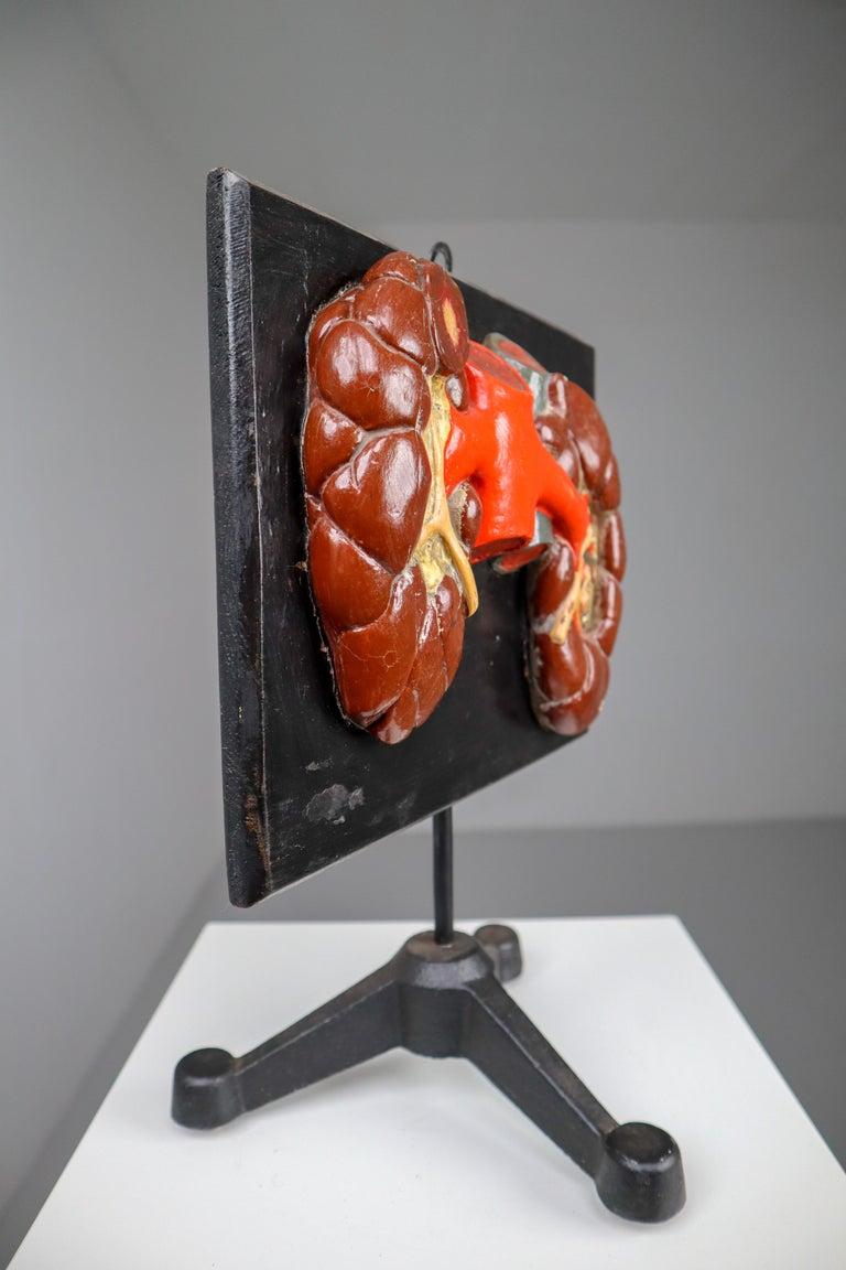 Kidneys Anatomical Model Wood and Plaster on Metal Base CZ, 1940s For Sale 1