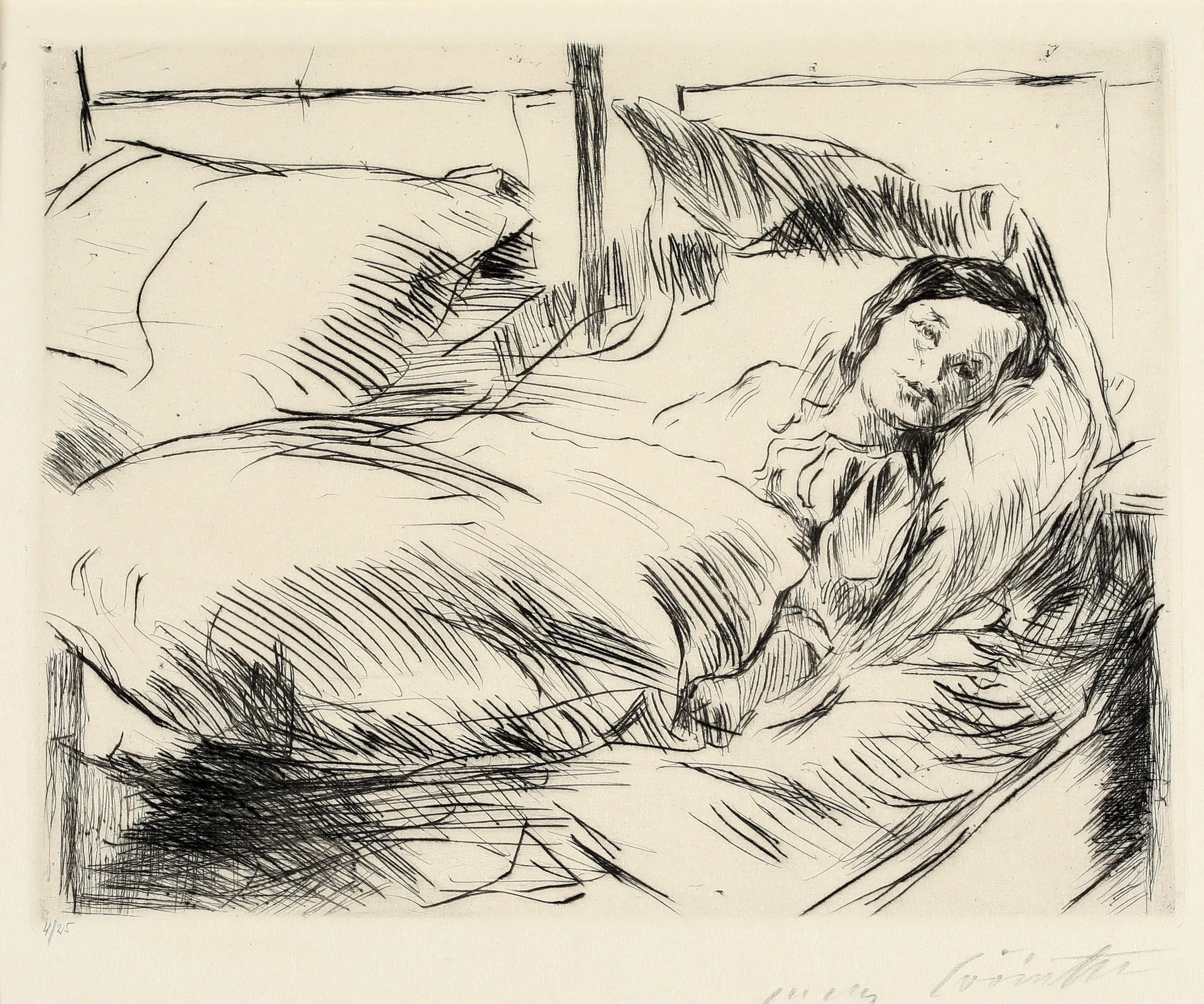"Lovis Corinth ""The Sick Child, 1918""  Hand signed etching, German Impressionist"