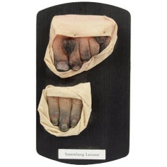 Pathological Wax Model Depicting the Aftermath of Toes Freezing, 1950s