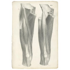Pl. C Antique Anatomy / Medical Print of the Thigh by Cloquet '1821'