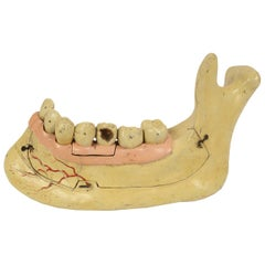 19th century Plaster Didactic Dentist Model of an Enlarged Mandible, Germany