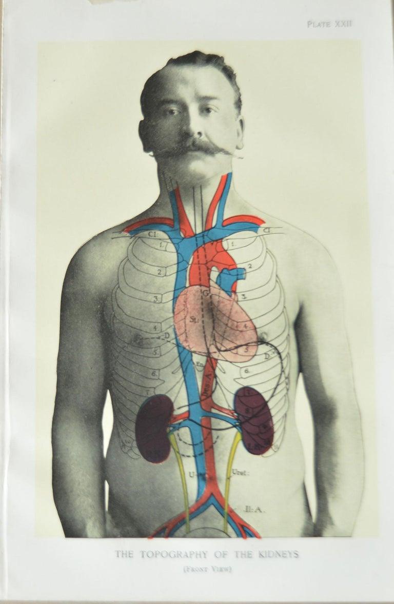 Fabulous set of 8 figural medical prints.  Unframed.  Published, circa 1900.