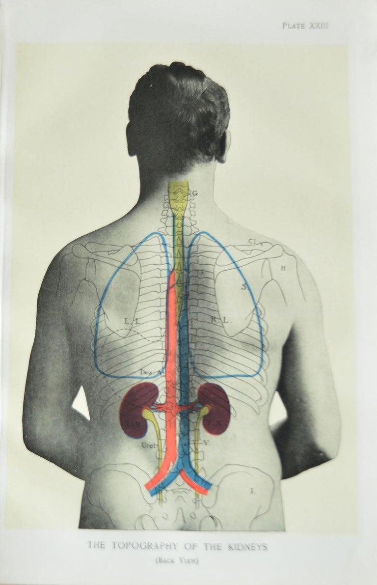 Edwardian Set of 8 Original Vintage Medical Prints