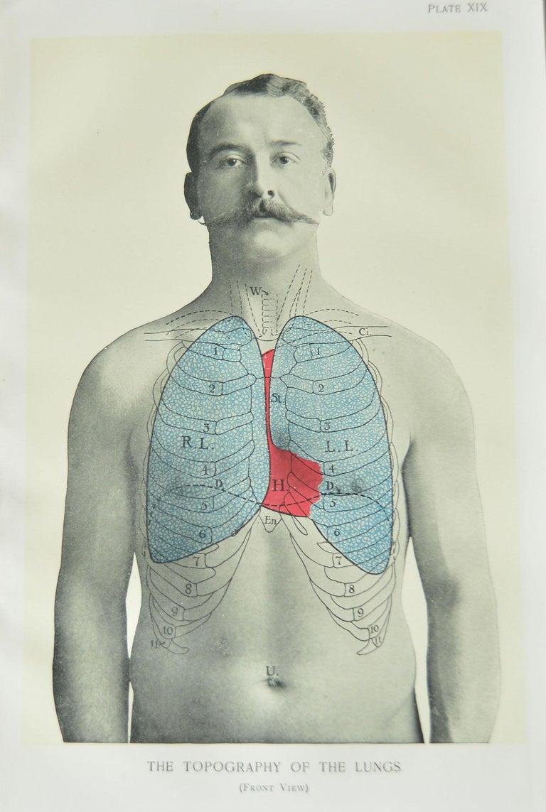 English Set of 8 Original Vintage Medical Prints