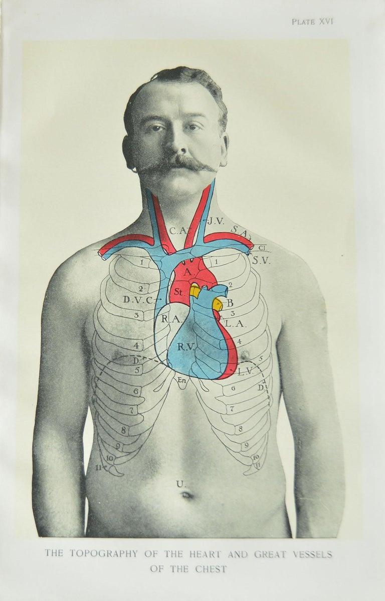 Other Set of 8 Original Vintage Medical Prints
