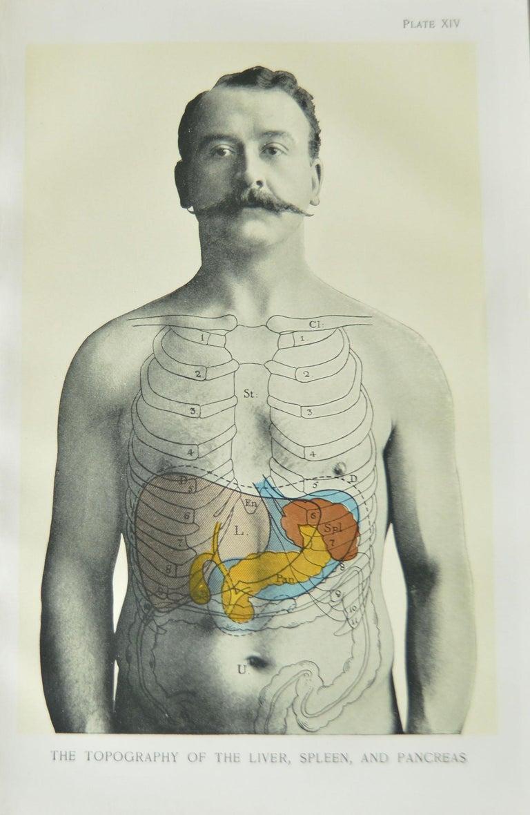 Set of 8 Original Vintage Medical Prints 1