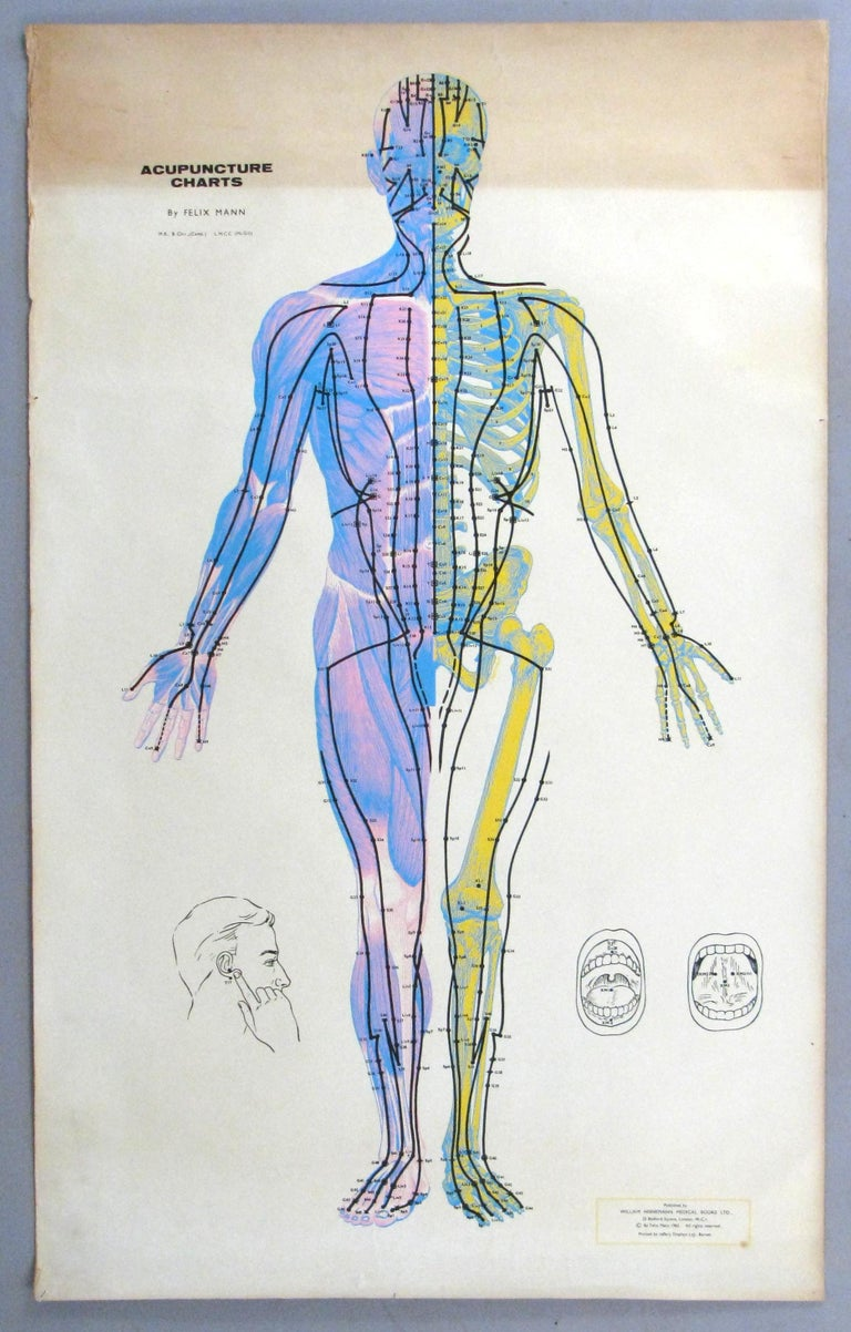 Set of Three Vintage Acupuncture Serigraphs on Linen by Felix Mann In Good Condition For Sale In Hudson, NY