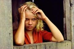 William Albert Allard, Girl with Yellow Hair and Malaria, Brazil, 1988